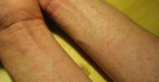 allergie e intolleranze alimentari